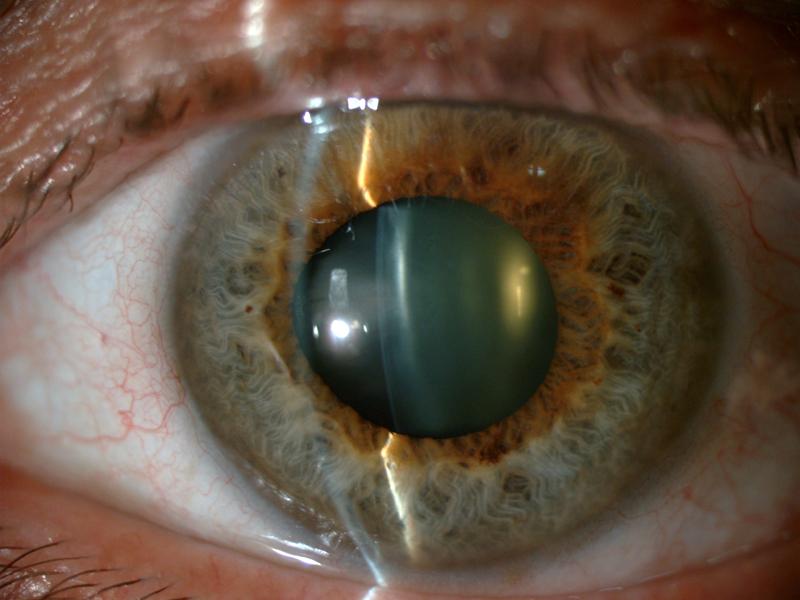 cataracta- Oftalmologia Valldeperas